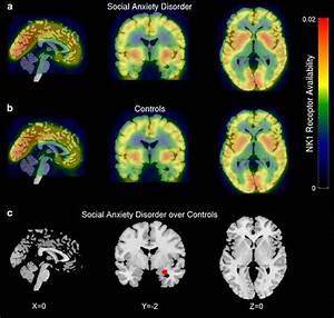 Parametric  11c Gr205171 Ki Images Showing Mean Neurokinin