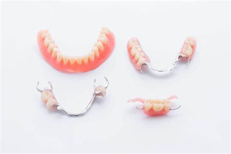 costo protesi mobile protesi dentarie mobili ultima generazione clinica di como