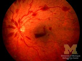 retinal hemorrhages ophthalmoscopic abnormalities
