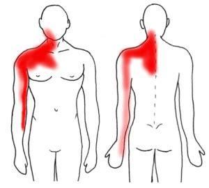 dolore interno braccio sinistro irene maurizi percorsi di trasformazione il dolore