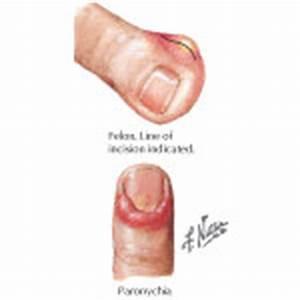 Felon and Paronychia Infections