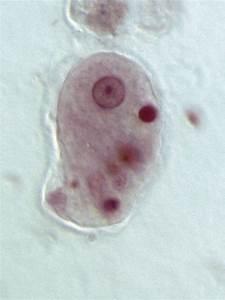 Entamoeba histolytica - Wikipedia