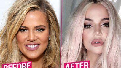 Khloe Kardashian Unrecognizable After Massive Plastic ...