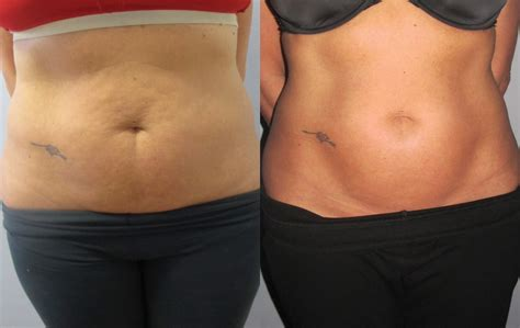 contour light body sculpting before and after body contouring before after photos lightrx face body