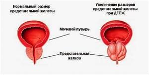 Аденома простаты лечение в украине
