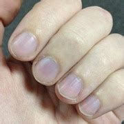 dusky nail beds bluish purple fingernails nail