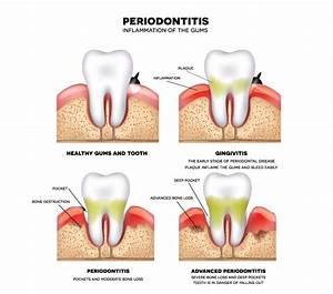 Changes In Gum Health