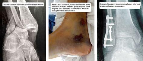 douleur cheville interieur 28 images entorse cheville torturaievoyage entorse du genou