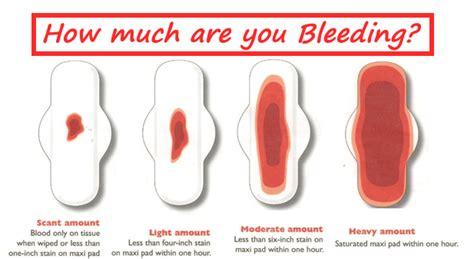 Punca Rahim Wanita Jatuh Senang Hamil Spotting Coklat Sebelum Keluar Darah Merah