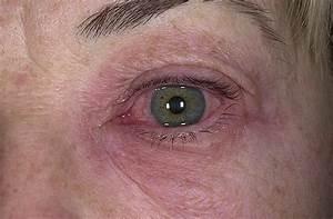 Аллергический дерматит и псориаз как отличить