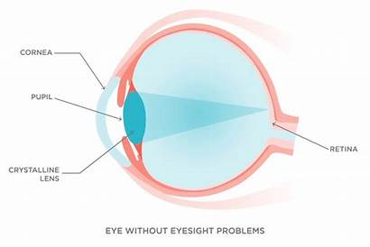 Astigmatism Hyperopia Presbyopia Vision Cornea Retina Symptoms
