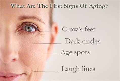 Do You Have These First Signs Of Aging?  Eminence Organic. Group G Signs. Scalloped Edge Signs. Infographics Signs. Victorian Bathroom Signs. Dysmorphic Feature Signs. Athlete's Foot Signs Of Stroke. Chemical Signs. Diet Signs Of Stroke