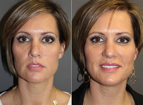 dermal fillers pictures boston ma patient