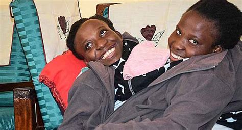 conjoined twins die   daily post nigeria
