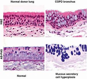 Goblet Cell Hyperplasia  Representative Images Of Normal