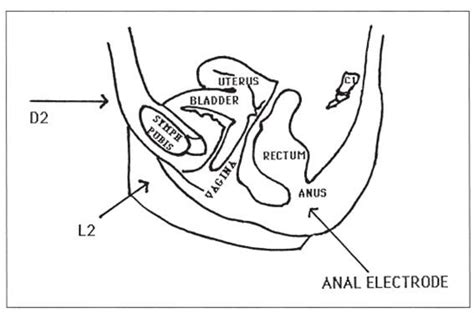 Pelvic Floor Interferential Therapy: Electrode Placement