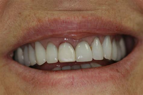 gallery cosmetic dental crowns houston dentist leila