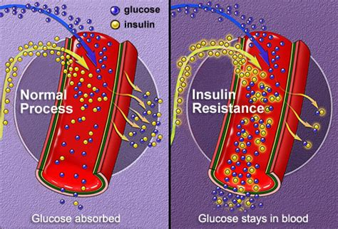 type  diabetes sitiks blog