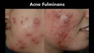 Acne Treatment. What is New?