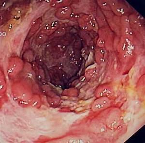 Colitis Ulcerosa test - dexMedica