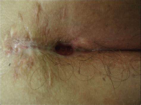 pilonidal cyst pin recurrent pilonidal cyst on pinterest