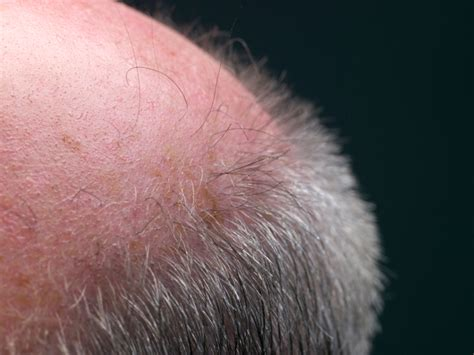 Fungal Infections And Hair Loss