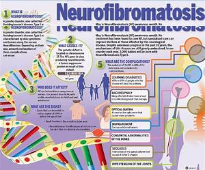 Neurofibromatosis – 1 in 3500 have it, associated with low ...