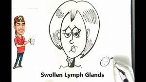 Swollen Lymph Nodes And Neck Glands Explained Simply
