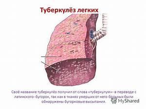 Реферат на тему остеохондроз болезнь и лечение