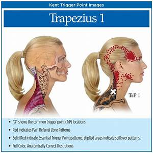 138 Best Images About Trigeminal Neuralgia And Tmj On