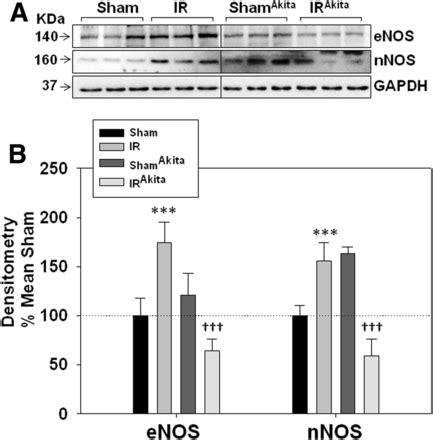 diabetic stroke figure diabetes epigenetic severity remodeling glial vascular dysfunction neuronal powerpoint tab open