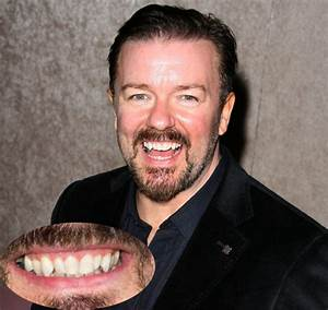 Celebrities with Crooked Teeth.