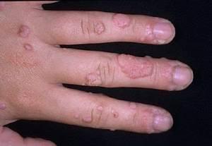 Болит удаленная папиллома