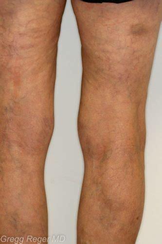 large vein treatment  woodlands tx reger vein  skin
