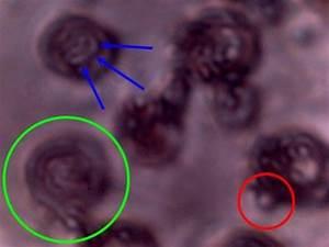 Хлорофиллипт масло при геморрое