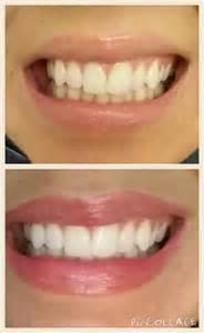 AP24 Toothpaste Whitening Fluoride