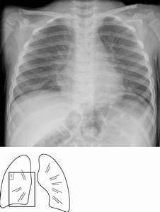 Viral pneumonia | Radiology Key
