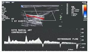Duplex Ultrasound Of The First Digit With Manual