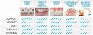 Orthodontic technology - Invisalign vs. clear braces