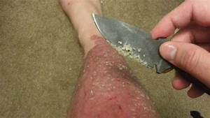 Psoriasis, cure In, ayurveda