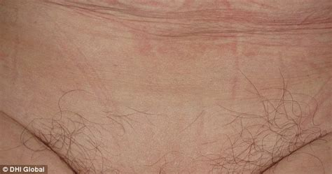 Surge In Women's Hair Transplants On Their Bikini Lines