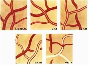 Hypertensive Retinopathy - Ophthalmology  3