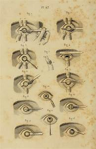 794 Best Images About Ophthalmology Oldies On Pinterest