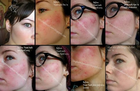 Image Gallery Fungal Acne
