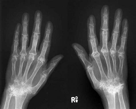 gene regulating damage caused  rheumatoid arthritis