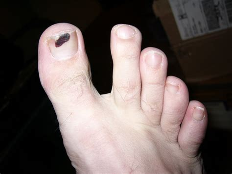 Blood Blister On Finger Nail Wwwpixsharkcom Images