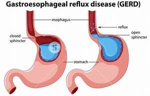 What U0026 39 S An Acid Reflux Disease