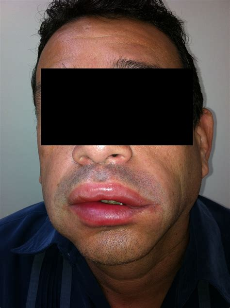 hives rash treatment  florida hives skin allergy