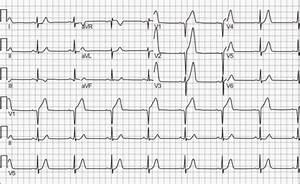 High Troponin Acute Myocardial Infarction False Positive