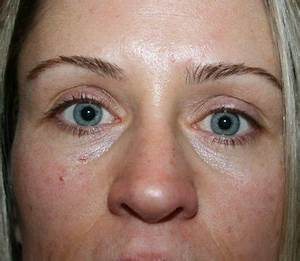 2 Weeks After Botox, Now Entire Eye and Face is Droopy ...